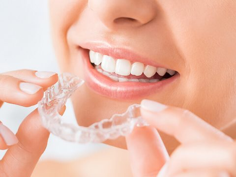 Getting the Best Invisalign Results