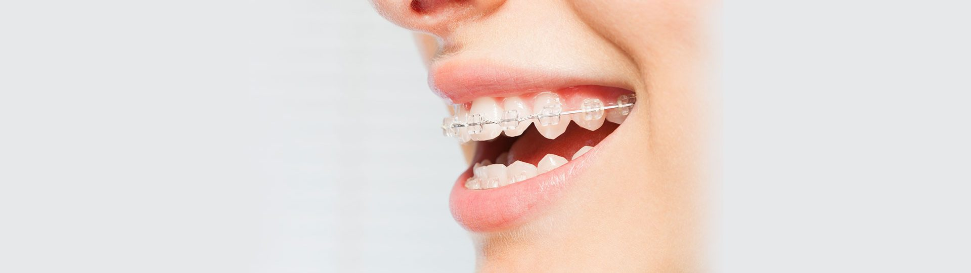 Metal Braces vs. Invisalign: Which is Best?